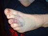 Foot_1a